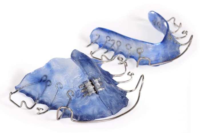 Dental brace for dental correction.