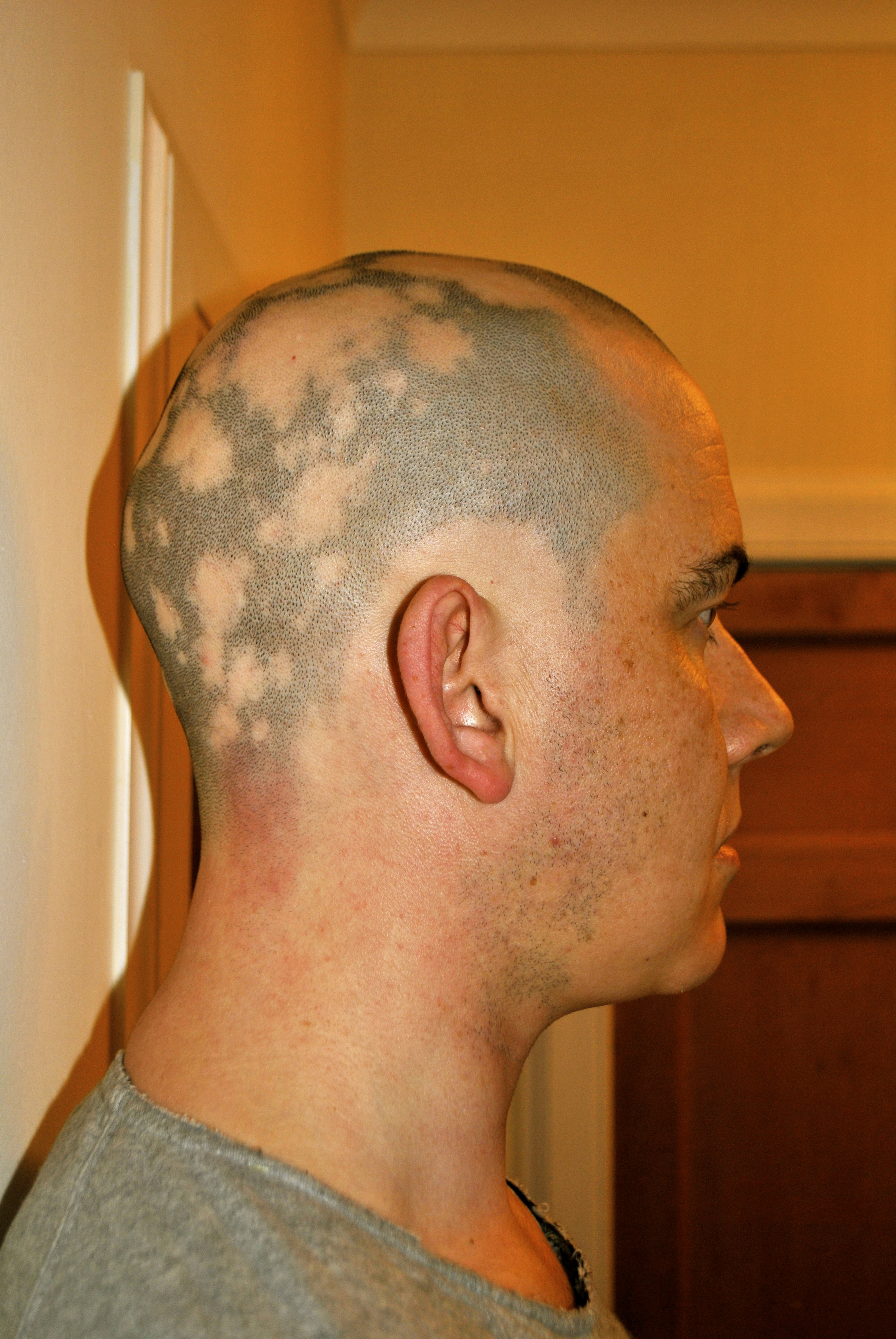 Alopecia Male From Hair To Eternity