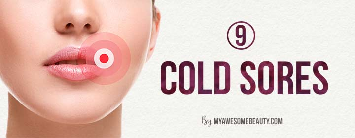 Around Sores Cold Mouth