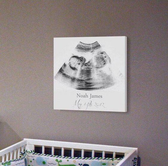 Baby Nursery Ideas 12 Result