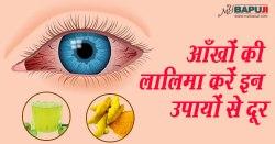 आँखों की लालिमा करें इन उपायों से दूर | How to Get Rid of Red Eyes: Home Remedies