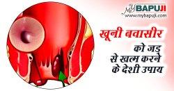 खूनी बवासीर को जड़ से खत्म करेंगे यह देशी 6 उपाय  | Best Home Remedies For Bleeding Piles