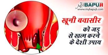 khuni-bavasir-ka-deshi-upchar