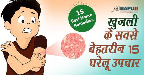 घरेलु नुस्खे(Home remedies),खुजली(Itching) ,Eczema,Khujli Ka Desi aur Gharelu ilaj ,दाद खाज(daad khaaj) ,Scabies ,Pruritus