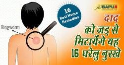 दाद को जड़ से मिटायेंगे यह 16 घरेलु नुस्खे  | Natural Home Remedies For Ringworm