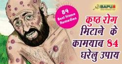 कुष्ठ(कोढ) रोग मिटाने के कामयाब 84 घरेलु उपाय | Home Remedies For Leprosy