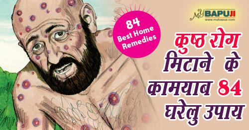 घरेलु नुस्खे(home remedies),कुष्ठ (कोढ)Leprosy,kusth rog,सफेद दाग(Safed Daag)