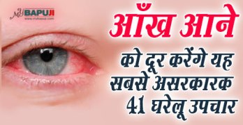aankh aana , आंख आना(CONJUNCTIVITIS), pink eye, Ankhon ka dard, aankhon se pani bahna,aakh ana