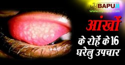 आंखों के रोहें के 16 घरेलु उपचार | Granular Trachoma Home Remedies