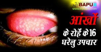 Granular Trachoma Home Remedies