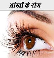 आँखों के रोग Aankho ke rogo ka Gharelu Upchar Nuskhe in hindi