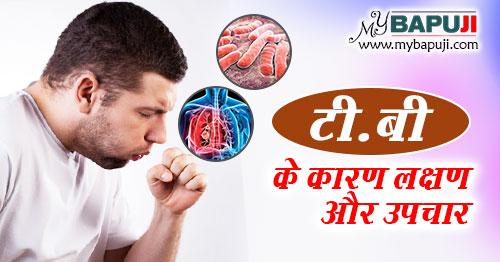 TB ka gharelu ilaj in hindi