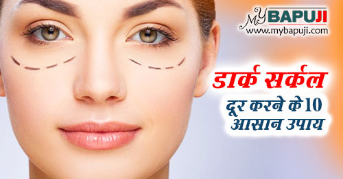dark circles dur karne ke upay in hindi