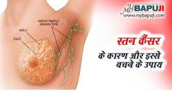 स्तन कैंसर : कारण, लक्षण और बचाव - Breast Cancer in Hindi