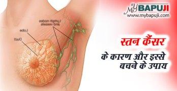 Stan Cancer Karan Lakshan aur ilaj in Hindi