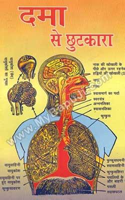 Dama Se Chutkara Hindi PDF Free Download