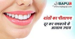 दांतों का पीलापन दूर कर चमकाने के आसान उपाय - Danto ka Peelapan dur Kar Chamkane ke Upay in Hindi