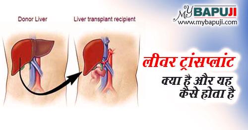 liver transplant surgery kya hai aur yh kaise hoti hai