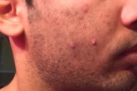 beard acne