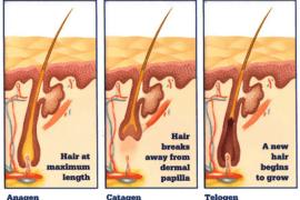 WHAT KILLS HAIR FOLLICLES