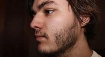 Dandruff in the Beards and Eyebrows | My Beard Gang