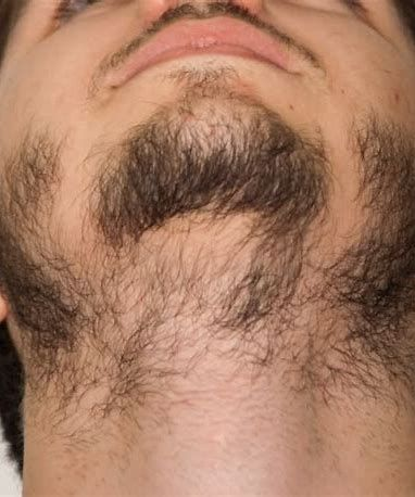 Patchy Beard Growth Lapse