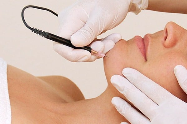 Best Home electrolysis hair removal kits to buy