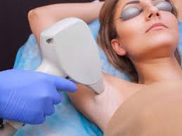 What is Laser hair removal and how does it work?