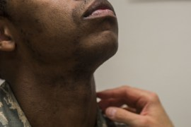 Prevent Ingrown Hair When Using an Electric Razor