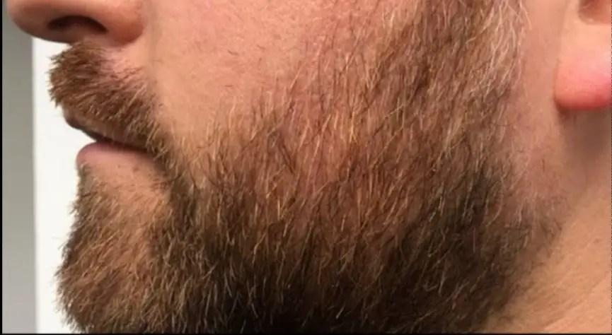 home remedies for beard oil, how to grow beard, how to grow a beard faster at 18, home remedies for beard care, beard growing tips, how to grow beard on cheeks,