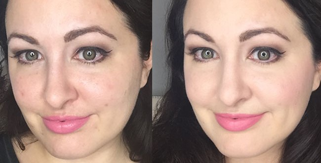 Before and After Acne Foundation