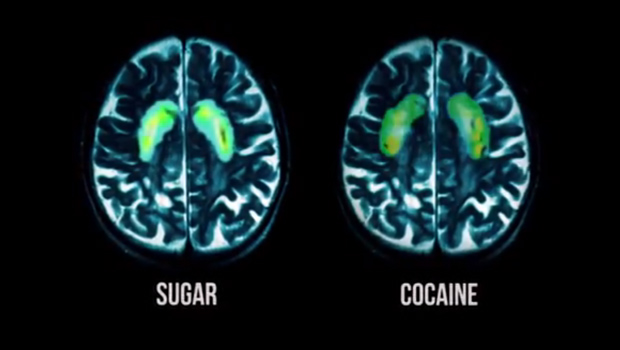 Pré-Diabetes 103: O consumo de açúcar ativa a mesma região do cérebro - e desencadeia reações semelhantes - a viciados em cocaína. (Fonte: RADIUS / TWC)