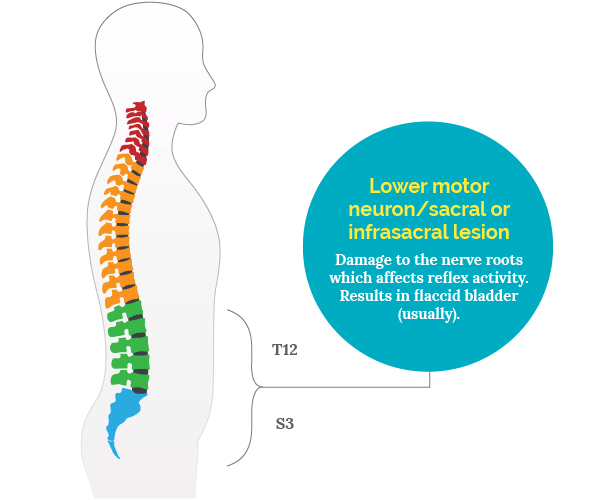 Lower motor neuron/sacral or infrasacral lesion