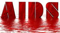 HIV does not cause AIDS