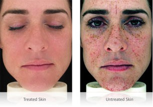 Benefits of laser skin treatment