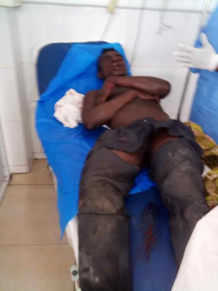 E/R: 24-yr-Old Man Beaten To Pulp For Stealing 'Wee' (PHOTOS) 2