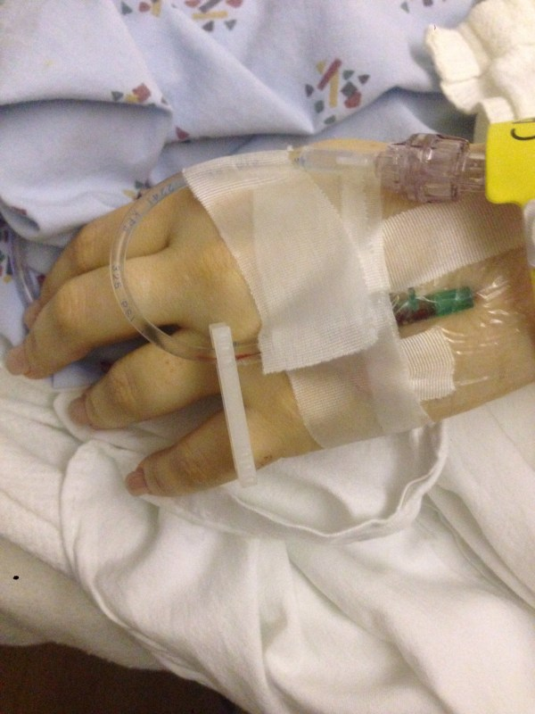 Surgery 2 - IVs