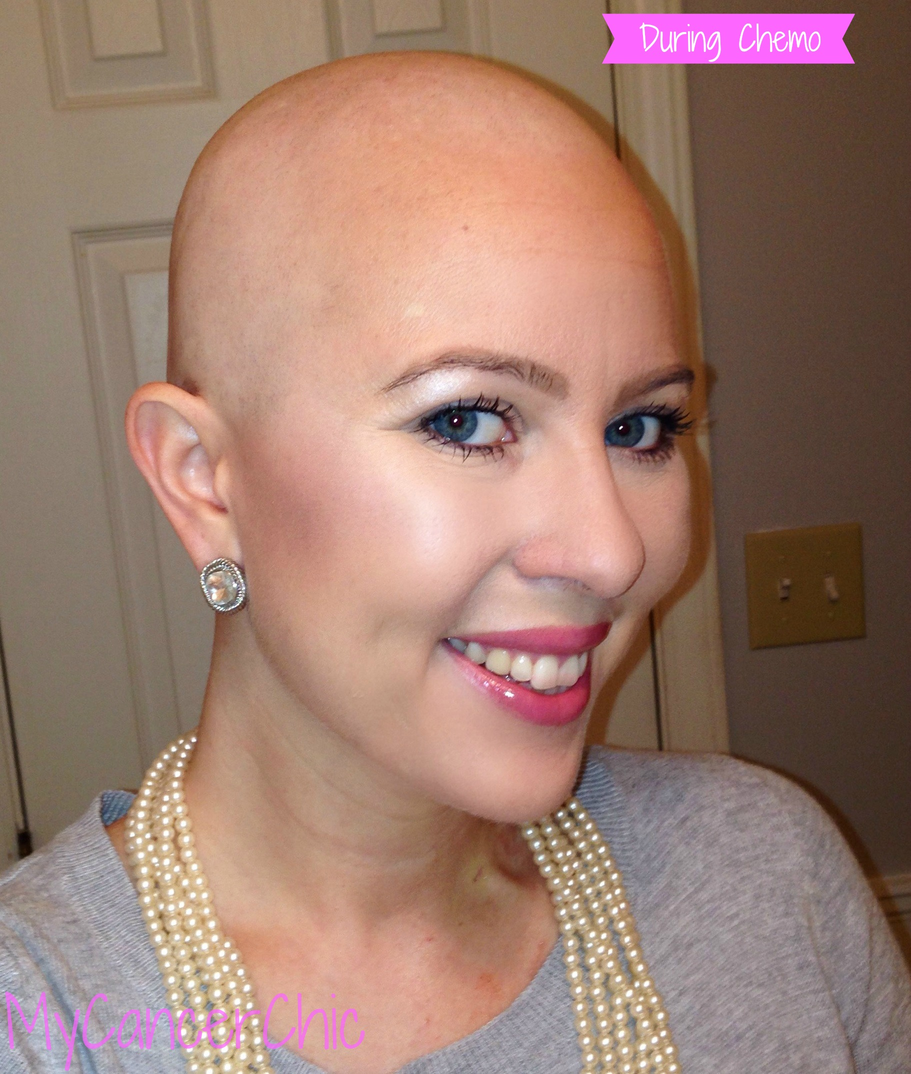 During Chemo Hair Growth