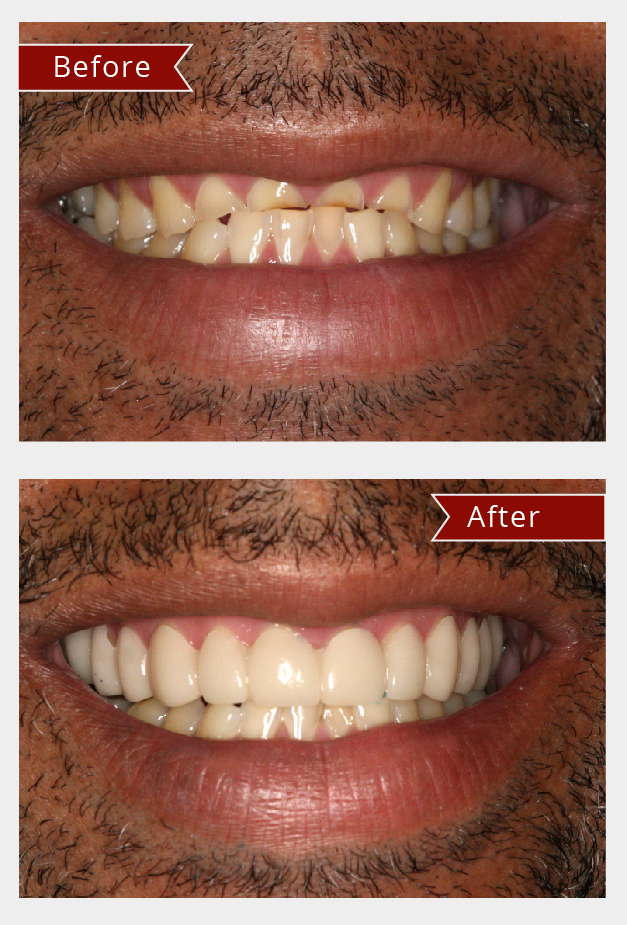 Dental And After