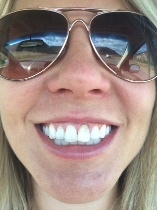 On my way to the oral surgeon's office - you can see how inflamed the gum tissue is about that front tooth (#9)