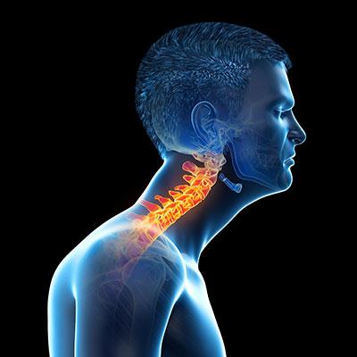 help prevent forward head posture