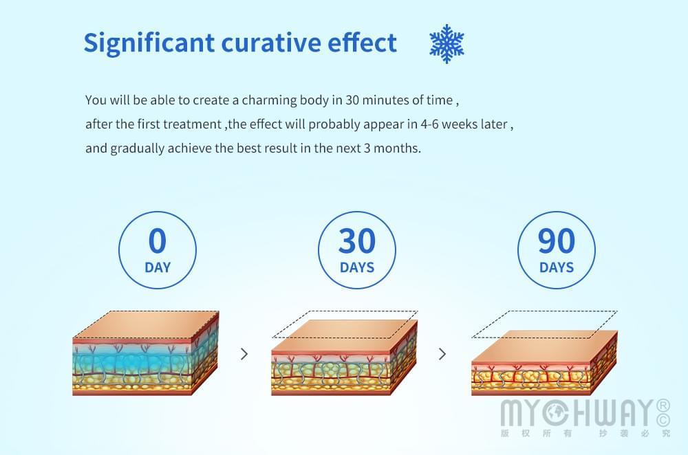 fat freezing effect