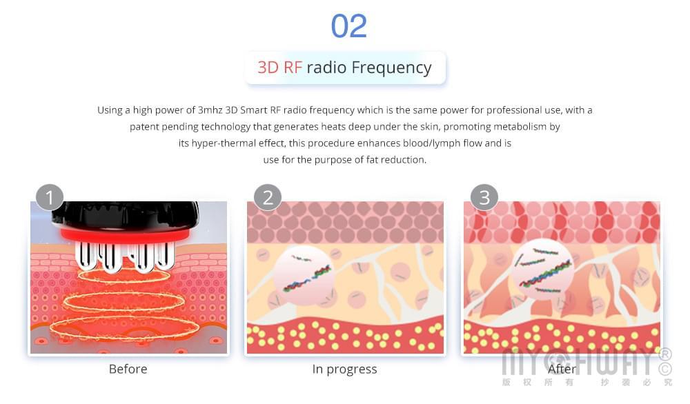 3d rf radio frequency