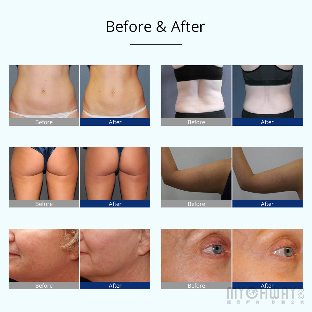 freezing cavitation rf before after