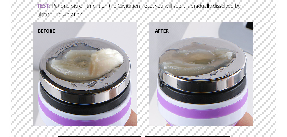 cavitation machine for weight loss
