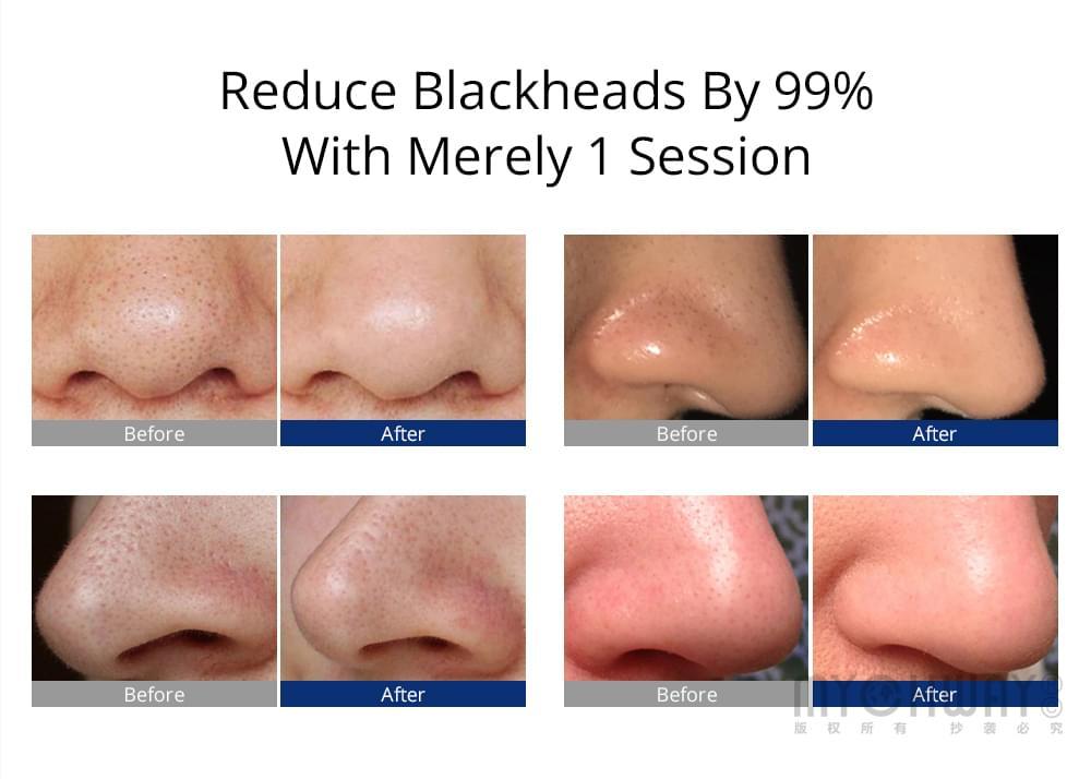 blackheads reduction