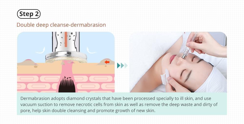 Microdermabrasion Device