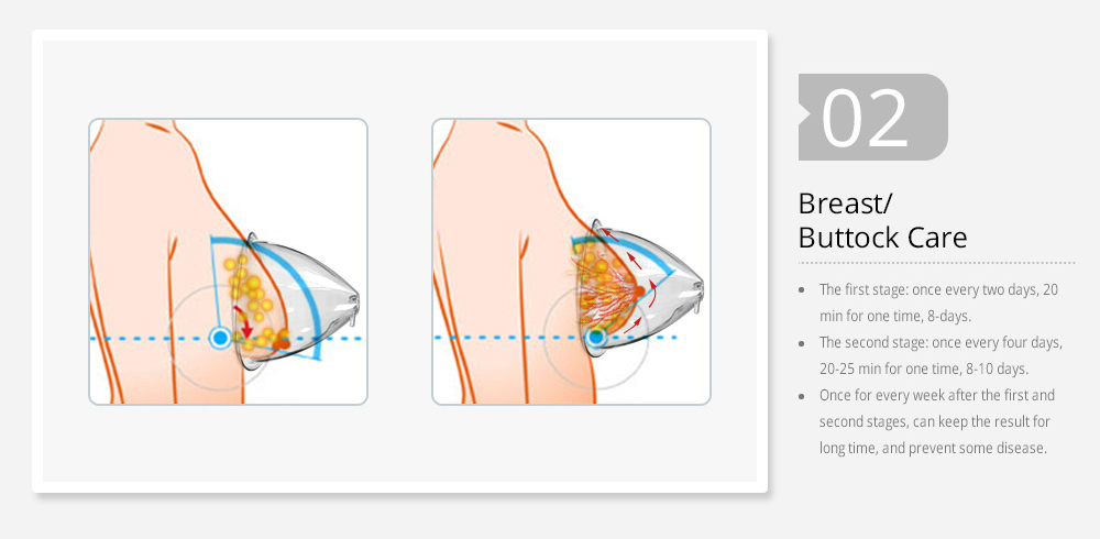 Breast shaping