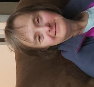 Down Syndrome Adult Female