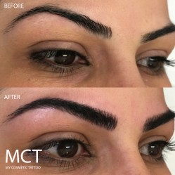Before and Immediately After Eyebrow Feathering Tattoo